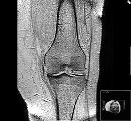 Arthrose - Arthritis